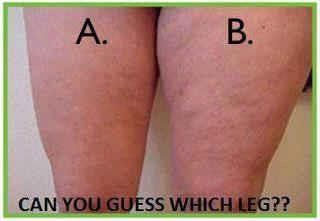 She used our all natural body wrap on one leg! Can you tell which leg?  Get your wrap on with It Works! Get your body wrap today! If you are interested in this product here is the website     https://skinnywithmel.myitworks.com/Home    #fitness #diet