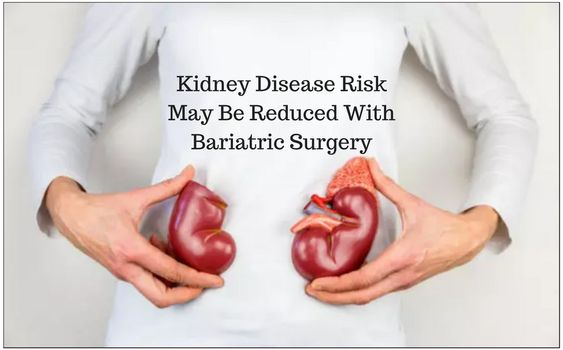 Kidney Disease Risk May Be Reduced With Bariatric Surgery
