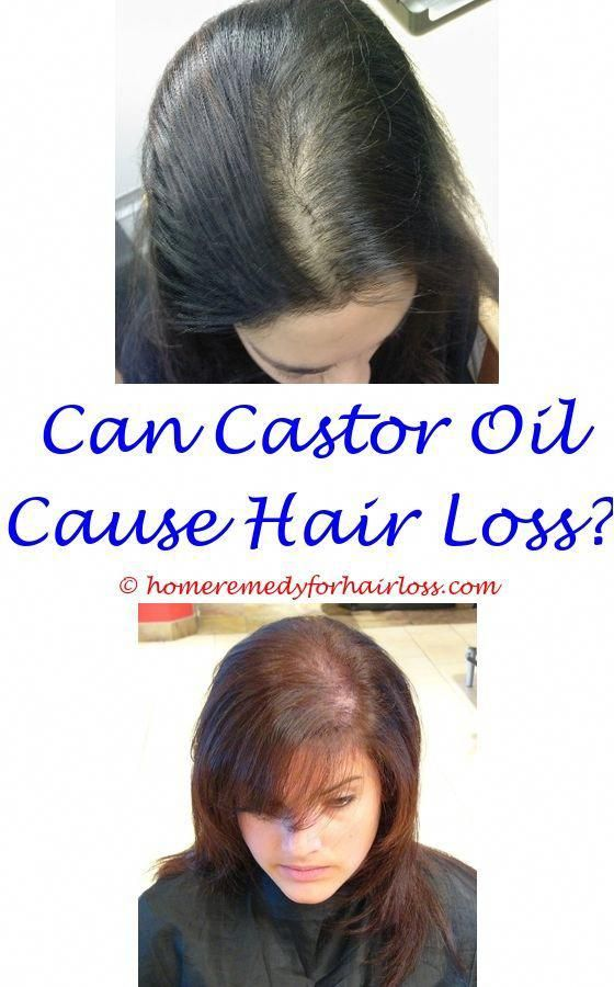 Can Too Much Cortisol Cause Hair Loss Hair Loss Taking Lamictal Young Living Cedarwood Oil F Hair Loss Remedies Hair Loss Medication Hair Loss Remedies Women