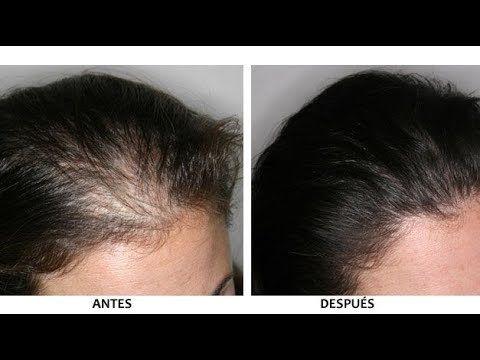 Pin En Hair Lose