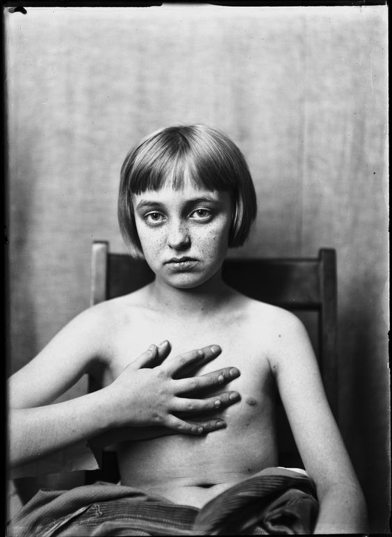 Photos of brain surgery's earliest patients. Harvey Cushing's archive