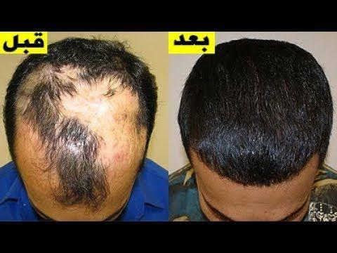 Youtube Hair Transplant Hair Control Hair Treatment