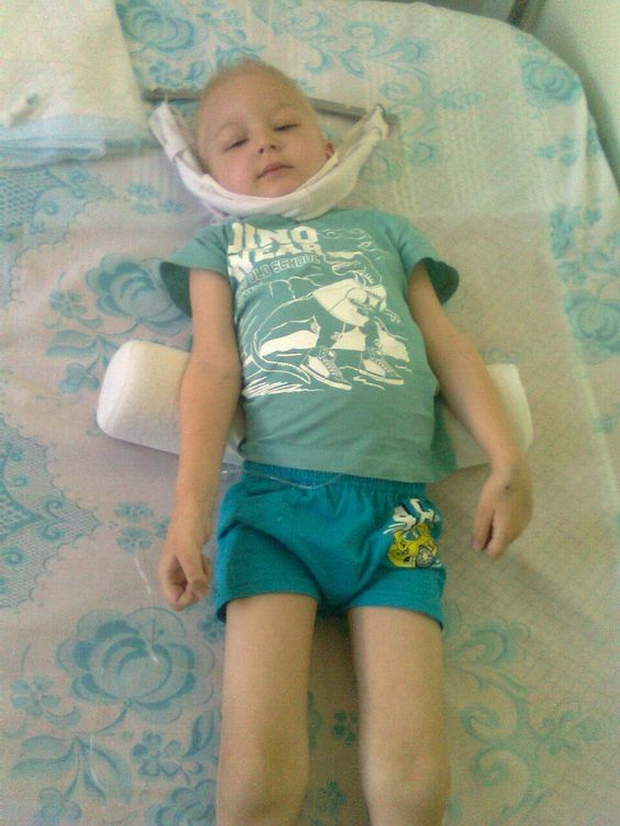 Kozachek Daniel - our baby, is in need of your help.  Life is not fair.  Why such a sweet child who is just beginning to live, already have to fight for his life? In his wonderful childhood experience such hardships?  Child, 4 years old, was treated in Mariupol 10 months, and all to no avail.  He was sent for examination in Kiev in NIIPAG to determine the diagnosis. The diagnosis was shocking - acute lymphoblastic leukemia complicated kompessionnym spine fracture.  In the ambulance, we were…