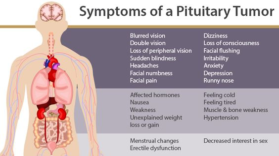 pituitary tumor - google search | pituitary tumor | pinterest, Human Body