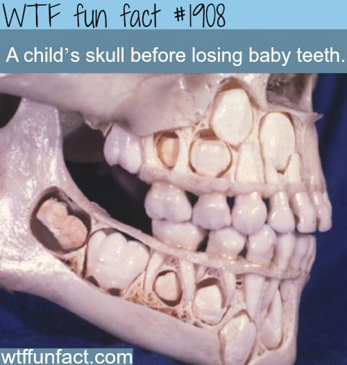 Childs skull, Teeth and A child on Pinterest
