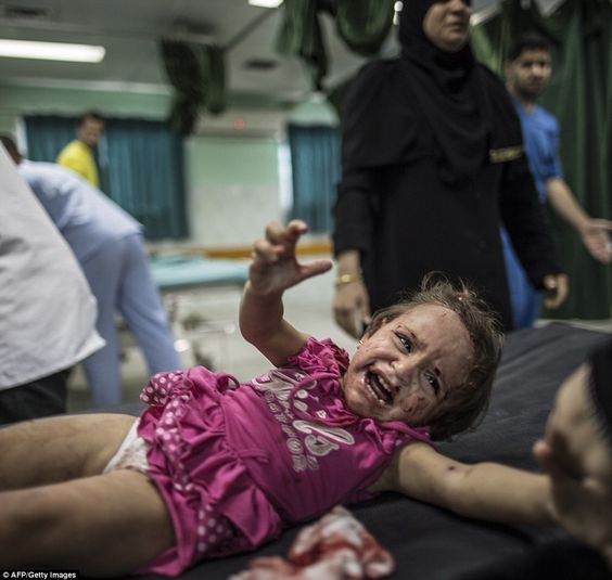 A Palestinian child screams in pain at the Kamal Adwan hospital in Beit Lahia in the northern Gaza Strip