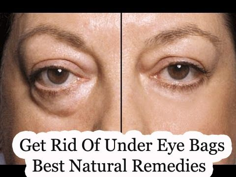 How To Get Rid Of Bags Under My Eyes Naturally