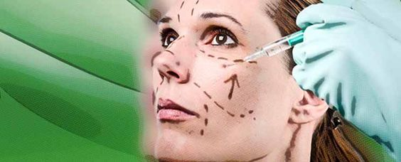 Rellenos faciales con Plasma: ¿cómo son? características  http://www.infotopo.com/salud/tratamiento/rellenos-faciales-con-plasma