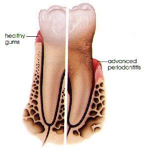 Left side: Healthy Gums Right side: Periodontists or Gum Disease   #Dentist #Hygienist