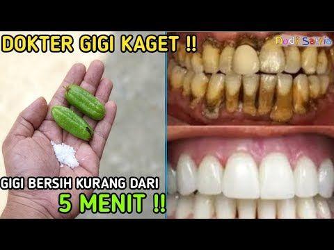 Kurang Dari 5 Menit Gigi Putih Bersih Karang Dan Plak Gigi Luntur Youtube Pemutih Gigi Alami Kesehatan Gigi Obat Alami
