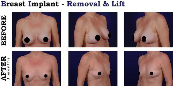 Breast implants surgeon oregon