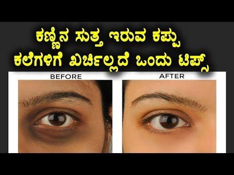 How To Remove Eyes Dark Circles Naturally In Kannada Beauty Tips In Kannada Namma Kannada Tv Yout Dark Spot Remover For Face Beauty Skin Care Better Skin