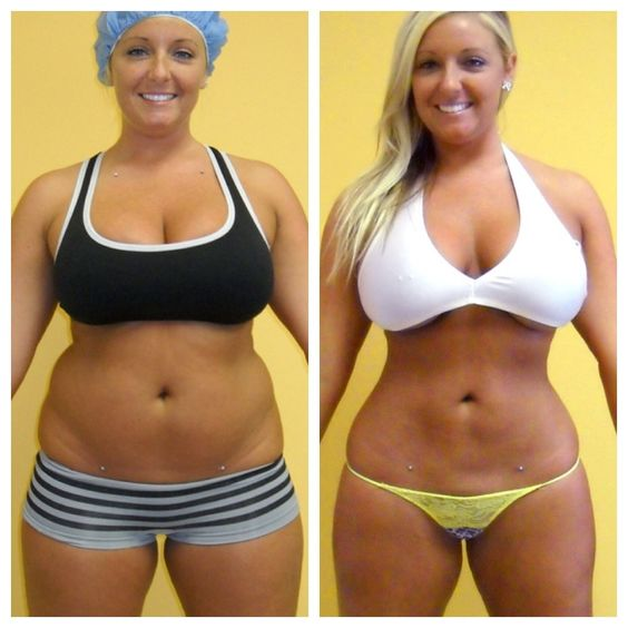 Http 3dbodyscultping Net Dr Miles Has Performed Over