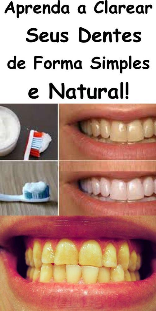 Procedimento De Clareamento De Dentes Amarelo Simples Funciona O