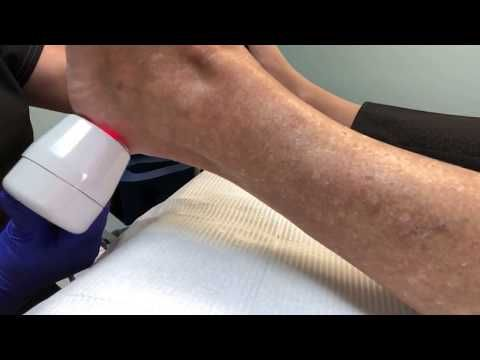 Pin On Regenerative Medicine Foot And Ankle