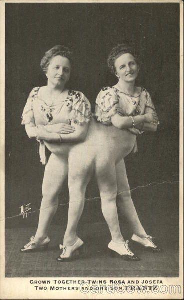 8 Incredible Vintage Photos of 'Freaks' Who'd Rock AHS: Freak Show