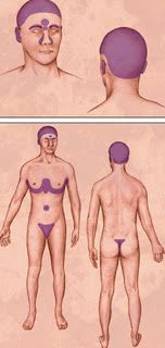 i Health Blogger: Seborrheic Dermatitis - Scalp Pictures, Causes and...