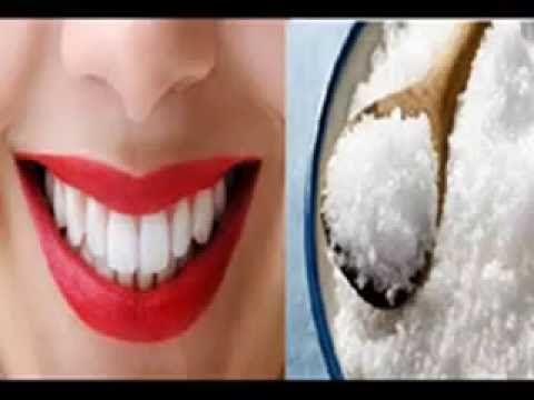 Cara Memutihkan Gigi Dengan Garam Dapur Anak Jalanan Pinterest