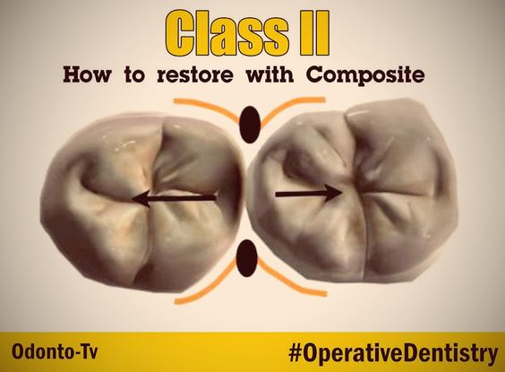 OPERATIVE DENTISTRY: How to restore the difficult Class II with Composite - CLINICAL CASE | Videos de Odontología, Odonto-Tv