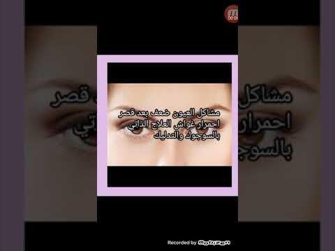 وسيله لعلاج مشاكل العين بعد قصر غواش انسداد القناة الدمعيه احمرار العين في العلاج الذاتي السوجوك Youtube Lipstick Beauty Youtube