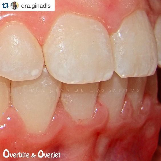 Odontologia Report On Instagram Repost Dra Ginadls With Repostapp Sobremordida Vertical Y Horizontal Pa General Dentistry Dentistry Instagram Posts