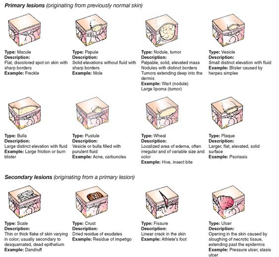 Types of Skin Lesions | Skin Disorders (Adult Care Nursing) Part 2