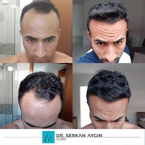 Vor Und Nach Der Haartransplantation Sac Ekimi Oncesi Ve Sonrasi