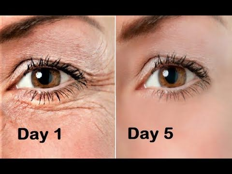 eye wrinkle treatment at home