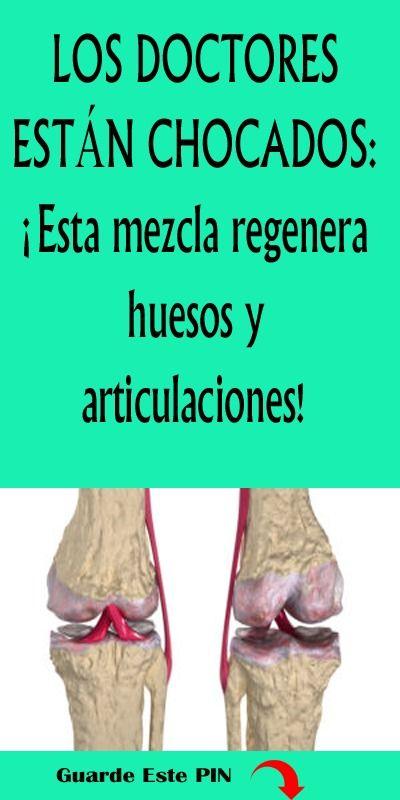 Los Doctores Están Chocados Esta Mezcla Regenera Huesos Y Articulaciones Doctores Huesos Articulacione Remedios Para La Salud Recetas Para La Salud Salud