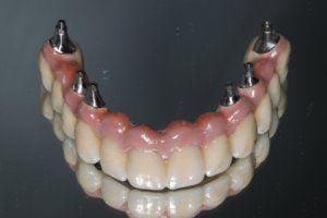 De tandarts en je tandjes