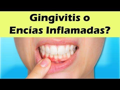 Remedio para curar encias inflamadas