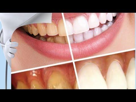 قلي وداعا لطبيب الاسنان وصفة فعالة جدااا لازالة الجير وتبيض الاسنان مجربة ومضمومة 100 100