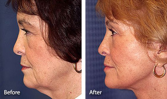 Face Lift Before and After Photos: Lower and Mid-Face Lift, Eyelid Surgery, Brow Lift, and Neck Lift - Profile