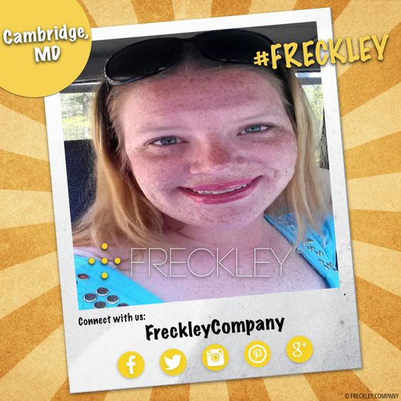 #Freckley people make the world #smile! - #freckles #freckle #freckled #freckly #frecks #frecklyface #freckleface #freckledface #frecklefaced #selfie #selfies #Cambridge #Maryland #CambridgeMaryland