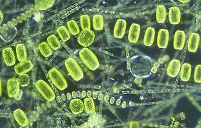 Phytoplankton. The dominating group of the phytoplankton in the Barents Sea is diatoms, often a mix of pennales and centric forms in some areas, whereas dinoflagellates are more common in other. Photo IMR