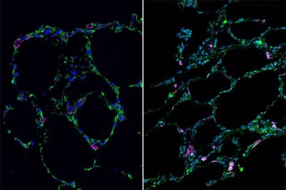 """By coating tiny gel beads with lung-derived stem cells and then allowing them to self-assemble into the shapes of the air sacs found in human lungs, researchers have succeeded in creating three-dimensional lung """"organoids."""" The laboratory-grown lung-like tissue can be used to study diseases including idiopathic pulmonary fibrosis, which has traditionally been difficult to study using conventional methods."""