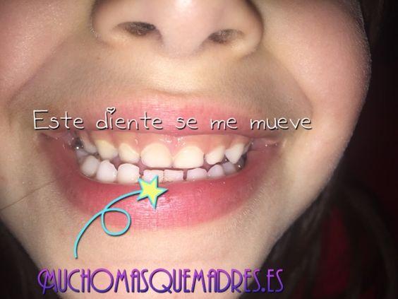 Dentición Infantil caida de los dientes. | Mucho más que madres.