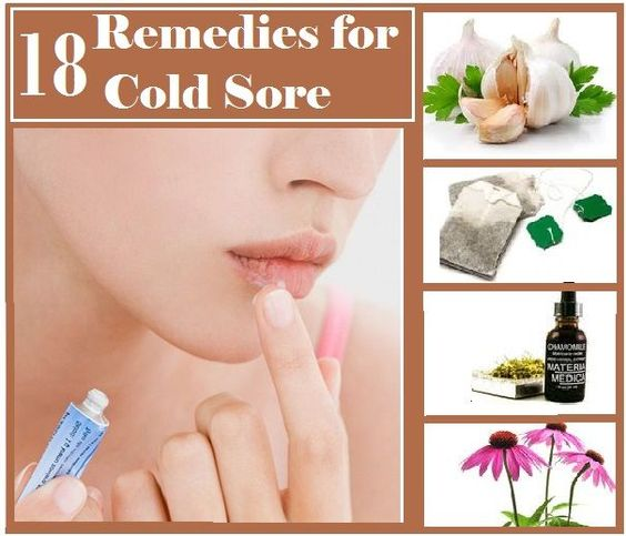 cold sore remedies home remedies for cold sore interesting tidbits 5721