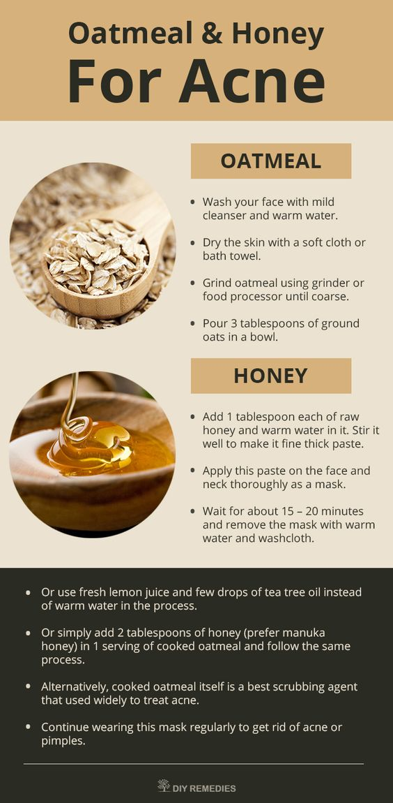 Mask – 1: (Oatmeal – Honey)  Honey has antibacterial, antioxidant and anti-inflammatory properties that fight against the acne and nourishes the damaged skin.: