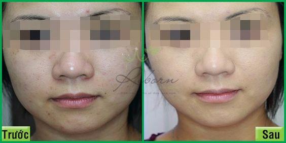 Trước và sau khi thải độc da mặt tại Reborn skin clinic