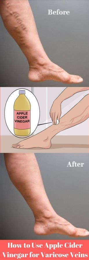How to Use Apple Cider Vinegar for Varicose Veins: