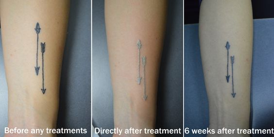 Ever wonder what having a tattoo removed looks like?