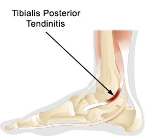 This often occurs in overweight, middle aged women and men as a result of degenerative changes in the tendon. The rupture may be partial or complete with pain below or behind the inside ankle bone (medial malleolus). A flattened arch is common. Anti-inflammatory treatment (physical therapy modalities), orthoses, and surgical debridement are common treatments.