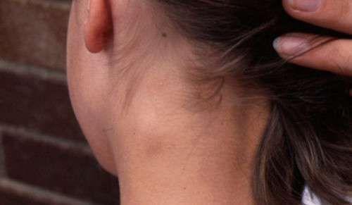 Comment lutter contre l'inflammation des ganglions lymphatiques ?
