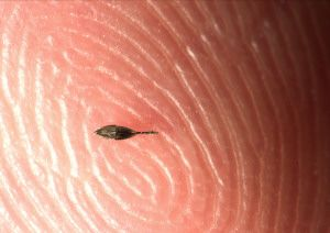 Microrobots to Perform Eye Surgery - - BioPharm International