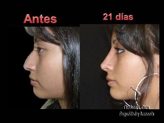 Teenage Rhinoplasty Nose Job Teen Cosmetic Surgery Facial Plastic - plastic surgery consultant sample resume
