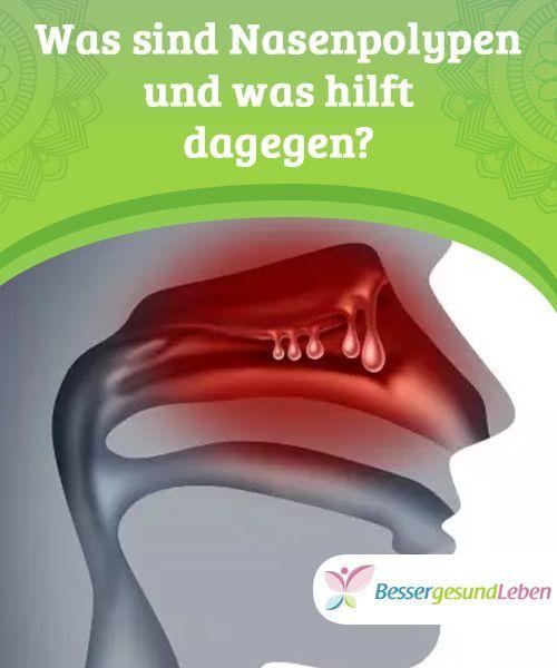 5 Hausmittel Zur Behandlung Von Nasenpolypen Ganzheitliche Heilung Besser Gesund Leben Magenschmerzen