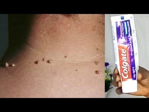 How To Remove Skin Tags At Home Updated Skin Tag Removal Skin
