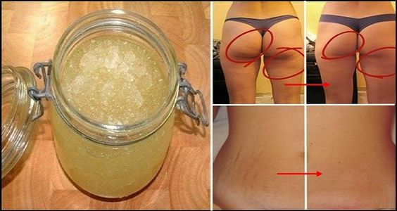 Getting rid of stretch marks is not simple but this recipe is quite affordable and simple and can be prepared for a few minutes and maybe can be helpful for you. Ingredients: 1 tablespoon of sugar 1 tablespoon of castor or olive oil Juice from half a lemon 1 capsule of vitamin E   Preparation: …