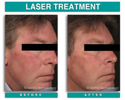 595 beam facial laser v